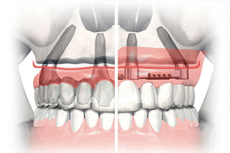 All On Four Dental Impalants treatment concept in Maryland MD