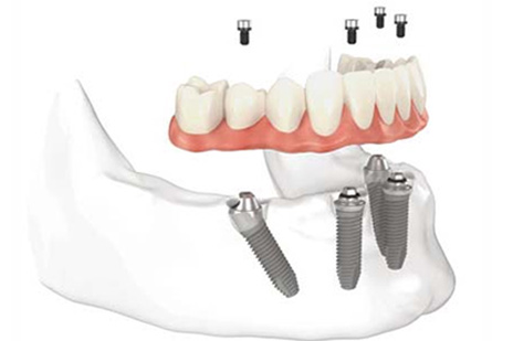 All On Four Dental Impalants treatment concept in Baltimore