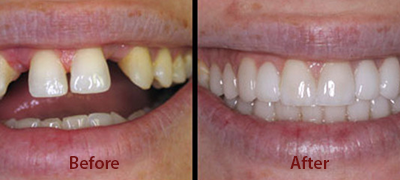 before after pictures for dental implant