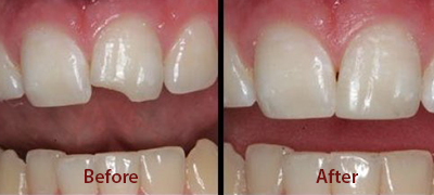 Dental Care Before After Pictures