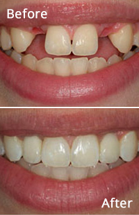 Baltimore Cosmetic Dentistry