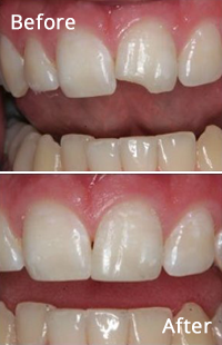 Cosmetic Dentistry in Baltimore