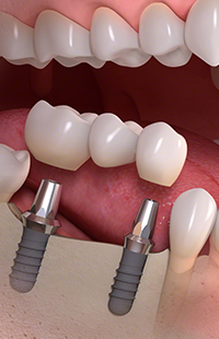 dental implants Maryland MD