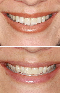 Invisalign in Maryland MD Baltimore