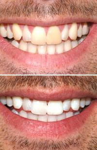 Teeth Whitening Baltimore