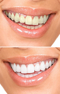 teeth whitening in Maryland MD