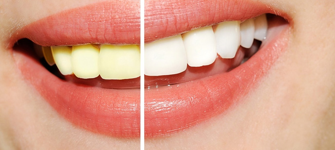 teeth whitening clinic in Baltimore