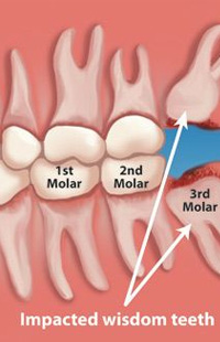Wisdom Tooth Extraction Maryland MD