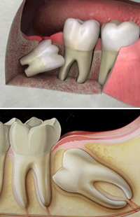 Wisdom Tooth Removal Maryland MD