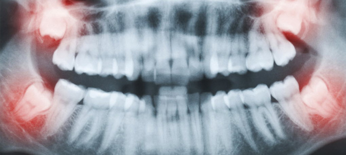Wisdom Tooth Extraction Baltimore